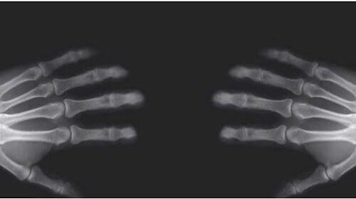 Strzelanie palcami – czy jest niekorzystne dla stawów?