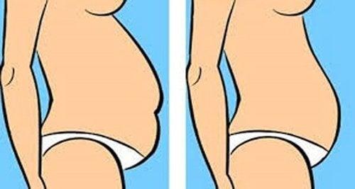 Typy brzucha