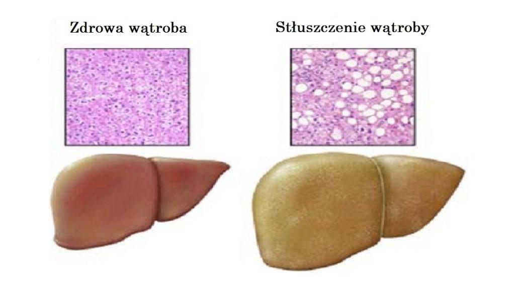 Zdrowie wątroby