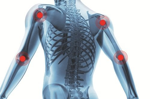 Bóle i zapalenie stawów