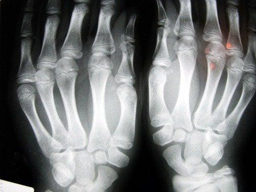 Zdjęcie RTG ukazujące zwyrodnienie stawów palce