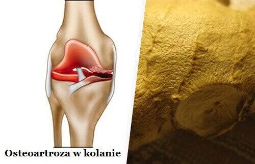 Osteoartroza – Walcz z jej symptomami!