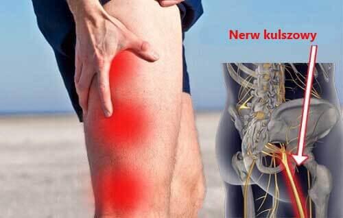 Rwa kulszowa – naturalne sposoby na łagodzenie bólu