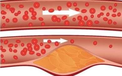 Cholesterol w naczyniach krwionośnych