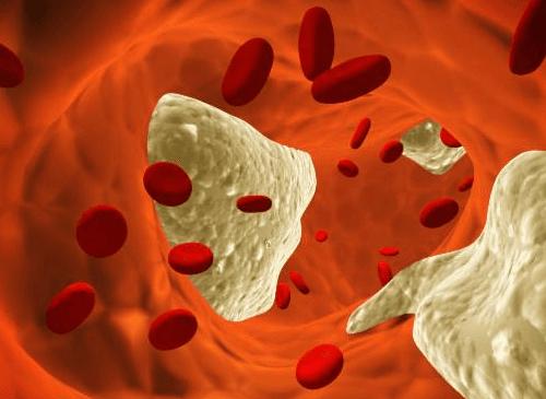 Miażdżyca – 12 naturalnych środków zapobiegających