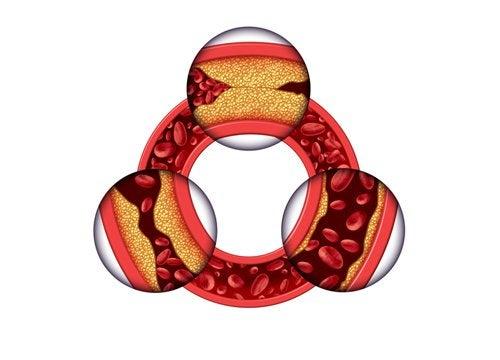 Cholesterol w tętnicach