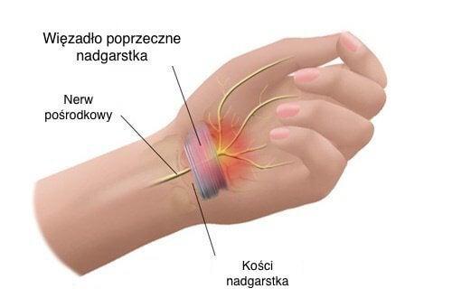 Objawy zespołu cieśni nadgarstka
