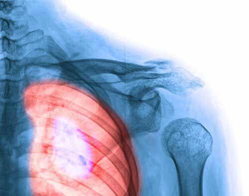 Rak płuc — objawy, które powinieneś znać!