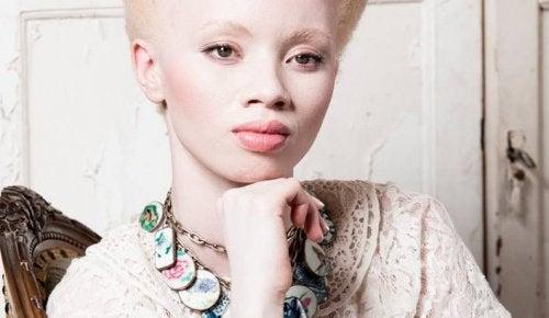 Albinizm w świecie mody