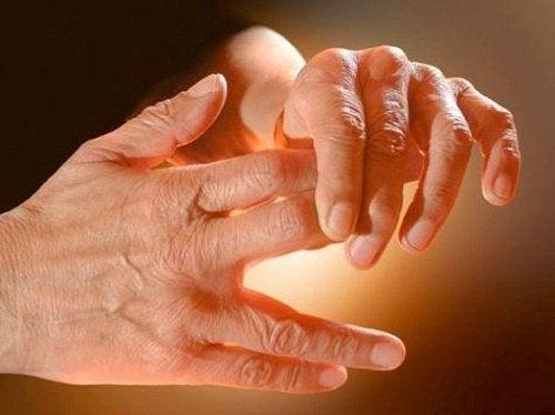 Mrowienie w rękach i nogach - przyczyny