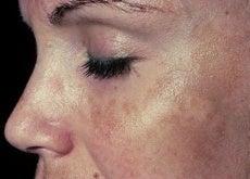 Przebarwienia na skórze
