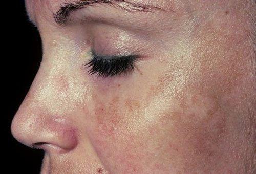 Plamy i przebarwienia na twarzy? 6 sposobów!