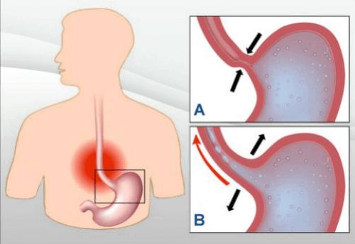 Refluks żołądkowy