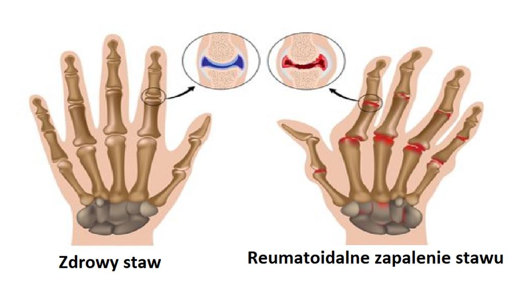 Reumatoidalne zapalenie stawu