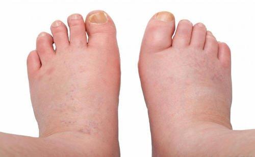 Sposoby na spuchnięte nogi – naturalne i skuteczne!