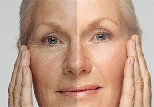 Starzejąca się skóra twarzy