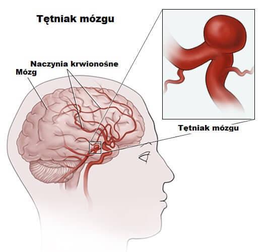 Schemat przedstawiający rozwijające się tętniaki w mózgu