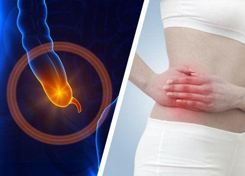 Zapalenie wyrostka - Rozpoznaj symptomy!