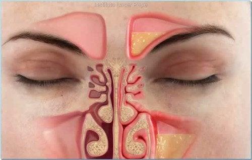 Zatkany nos