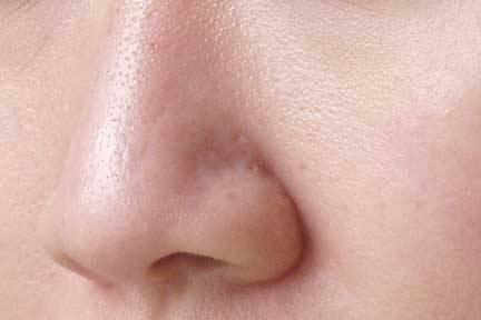 Rozszerzone Pory skóry