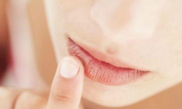 Suhe i spierzchnięte usta