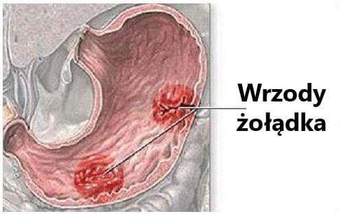 Wrzody żołądka – typowe objawy