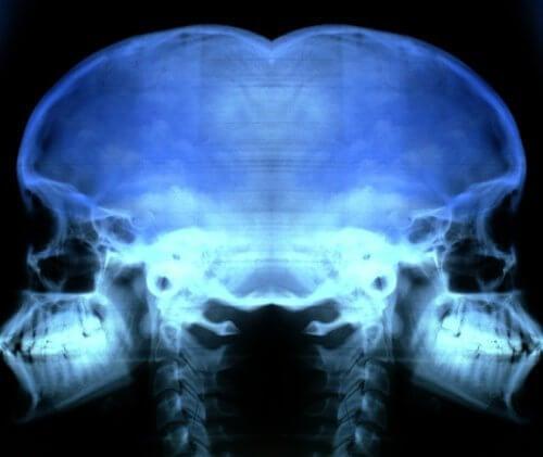 Wykrywanie osteoporozy