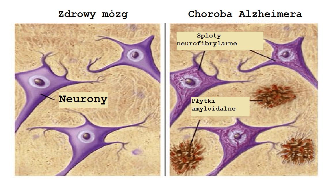 Neurony i Alzheimer