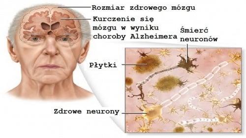 Choroba-Alzheimera