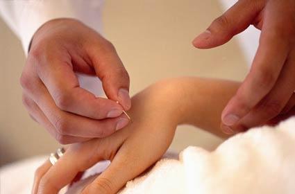 Leczenie akupunkturą