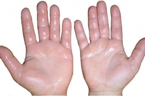 Opuchlizna dłoni