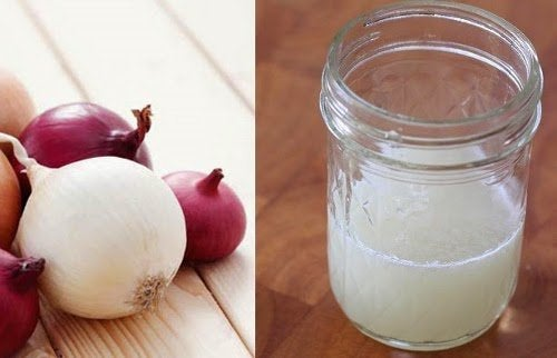 Wypadające włosy – wypróbuj sok z cebuli!