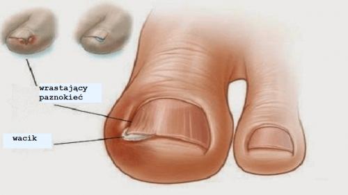 Wrastające paznokcie – domowe leczenie