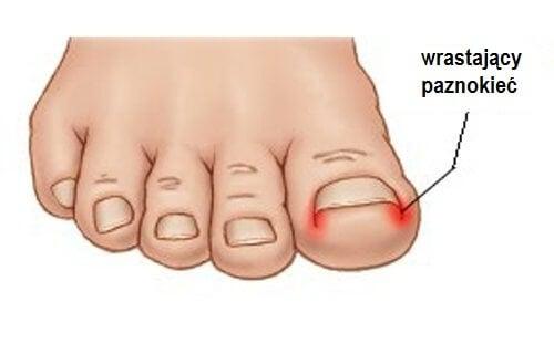 Wrastający paznokieć u nóg