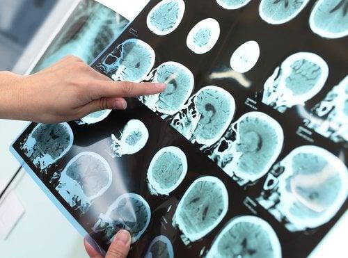 Wyniki badań mózgu