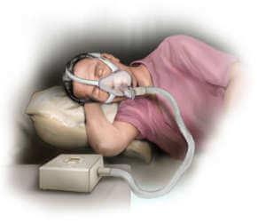 Problemy z oddychaniem podczas snu