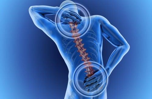 Ból pleców - rysunek poglądowy