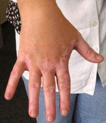 Bielactwo na dłoni
