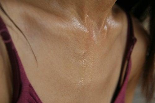 Nadmierna potliwość na szyi