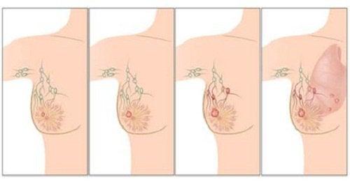Rak piersi u kobiet