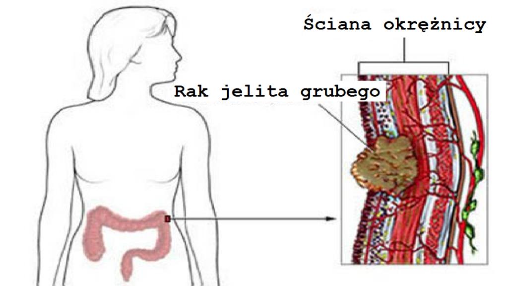 Rozwój raka jelita grubego u kobiet