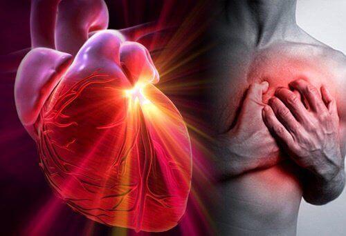 Ryzyko zawału serca