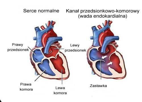 Szmery w sercu: 7 objawów, na jakie zwróć uwagę