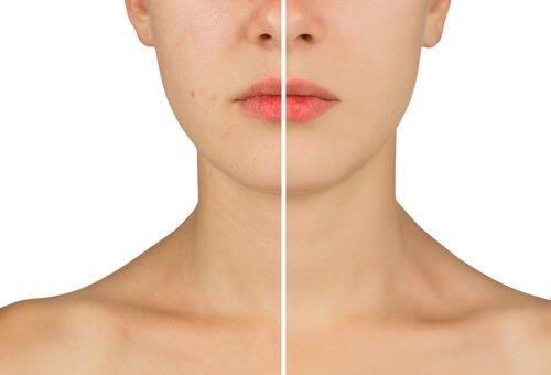 Skóra trądzikowa przed i po