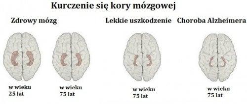 Alzheimer – Rozpoznaj wczesne sygnały