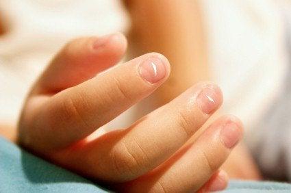 Białe plamy na paznokciach