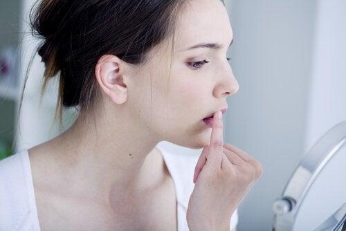 Kobieta dotyka ust - opryszczka