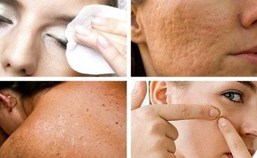 Nawyki szkodzące skórze