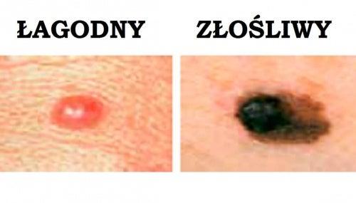 Nowotwór skóry