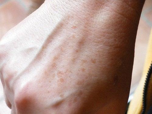Piegi na dłoniach